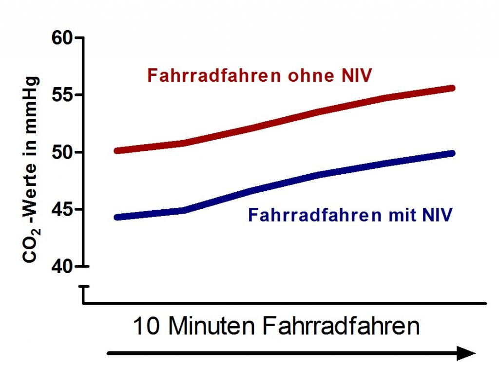 Abb.-1-NIV-Maskenanpassung-1024x683 Beatmung unter Belastung …