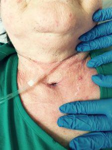 luftröhrenschnitt nach künstlichen koma