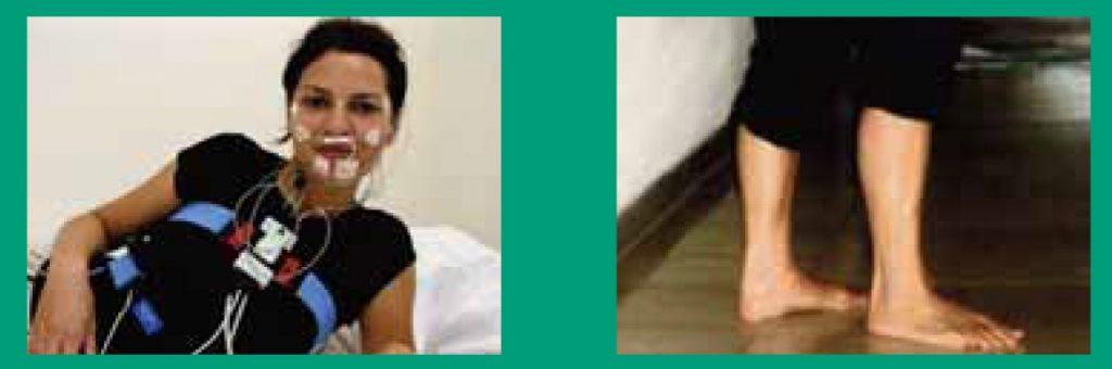 Restless-Legs-Syndrom-5-1024x338 Restless Legs Syndrom